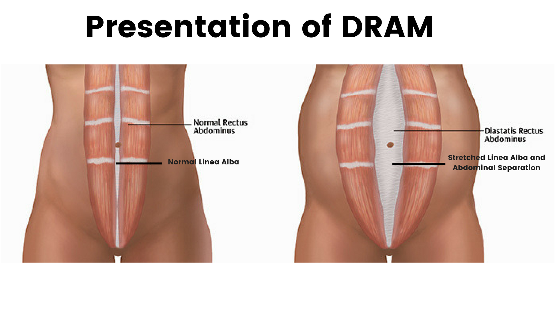 Diastasis Of The Rectus Abdominis Dram And Clinical Pilates